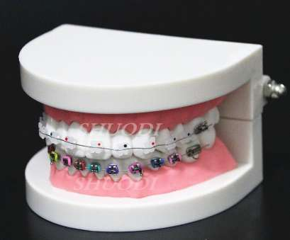 24 gauge dental wire Dental Orthodontic Treatment Model With Ortho Metal Ceramic Bracket Arch Wire Buccal Tube Ligature Ties on Aliexpress.com, Alibaba Group 24 Gauge Dental Wire Simple Dental Orthodontic Treatment Model With Ortho Metal Ceramic Bracket Arch Wire Buccal Tube Ligature Ties On Aliexpress.Com, Alibaba Group Collections