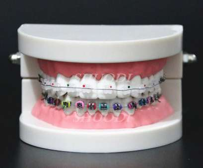 24 gauge dental wire Dental Orthodontic Treatment Model With Ortho Metal Ceramic Bracket Arch Wire Buccal Tube Ligature Ties on Aliexpress.com, Alibaba Group 24 Gauge Dental Wire Practical Dental Orthodontic Treatment Model With Ortho Metal Ceramic Bracket Arch Wire Buccal Tube Ligature Ties On Aliexpress.Com, Alibaba Group Galleries