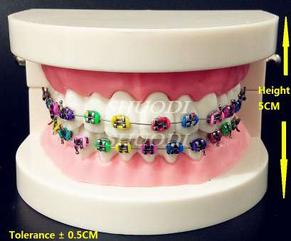 24 gauge wire thickness dental orthodontic treatment model with ortho metal bracket arch rh aliexpress, 24 Gauge Copper Wire 24 Gauge Wire Diameter 24 Gauge Wire Thickness Creative Dental Orthodontic Treatment Model With Ortho Metal Bracket Arch Rh Aliexpress, 24 Gauge Copper Wire 24 Gauge Wire Diameter Pictures