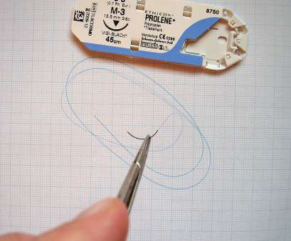 ethicon 18 gauge wire Surgical suture, Wikipedia Ethicon 18 Gauge Wire Creative Surgical Suture, Wikipedia Ideas
